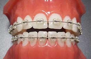 矯正歯科とはイメージ